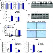 MiRNA-106a and prostate cancer radioresistance: a novel role for LITAF in ATM regulation